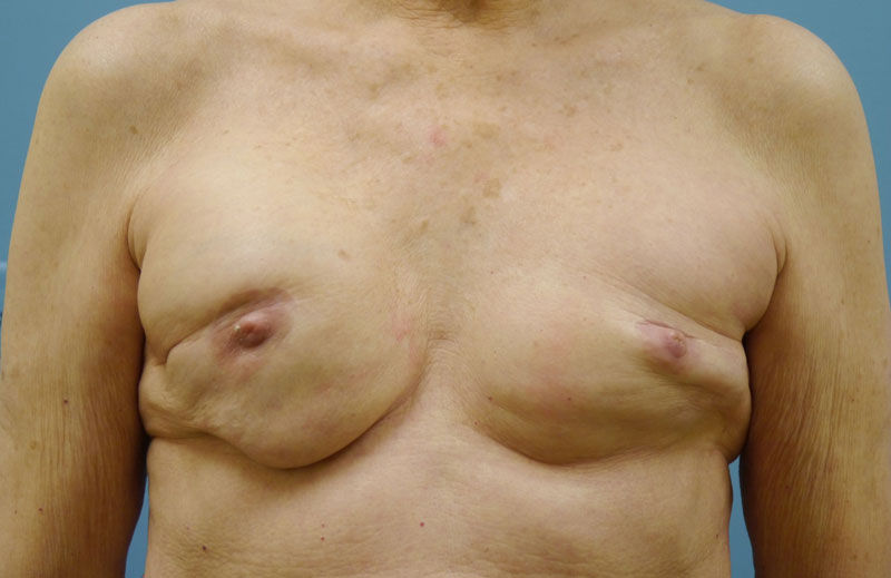 a report on breast reconstruction New breast implant for patients undergoing breast reconstruction, augmentation or revision surgery breast reconstruction and market research report.